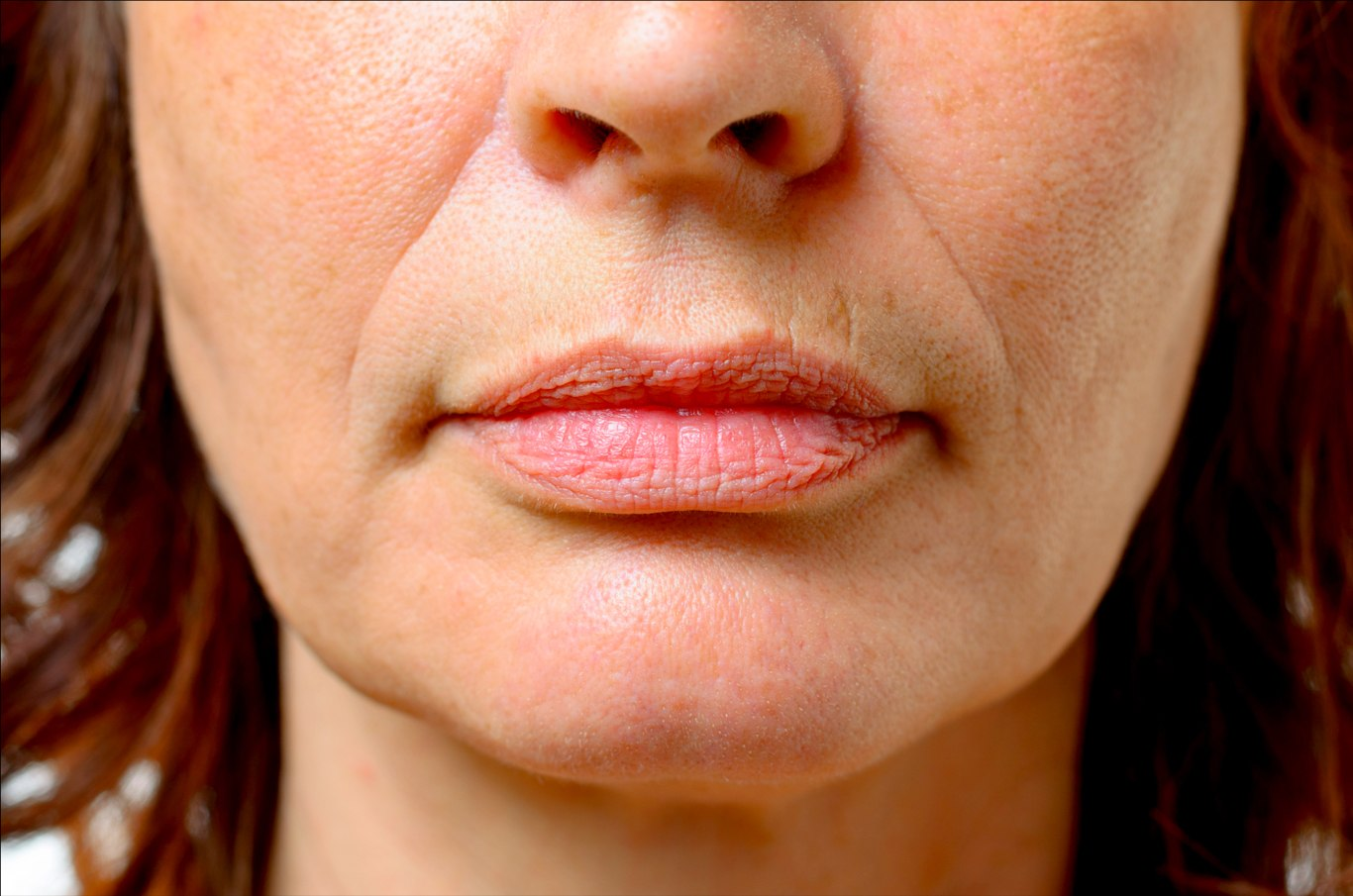 How to Get Rid of Wrinkles Around Mouth and Chin? Let's ...