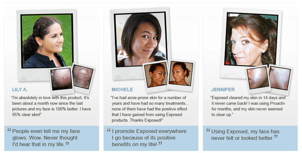 Exposed Skin Care - Customer Testimonial