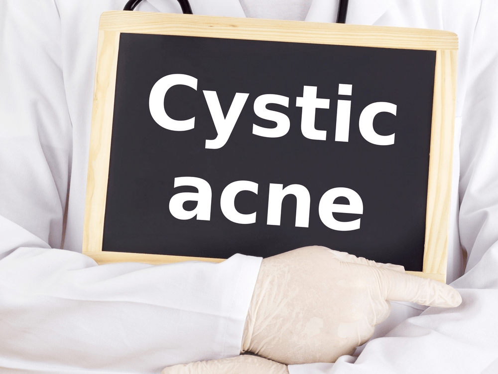 How Long Does Cystic Acne Last And How To Shrink Them