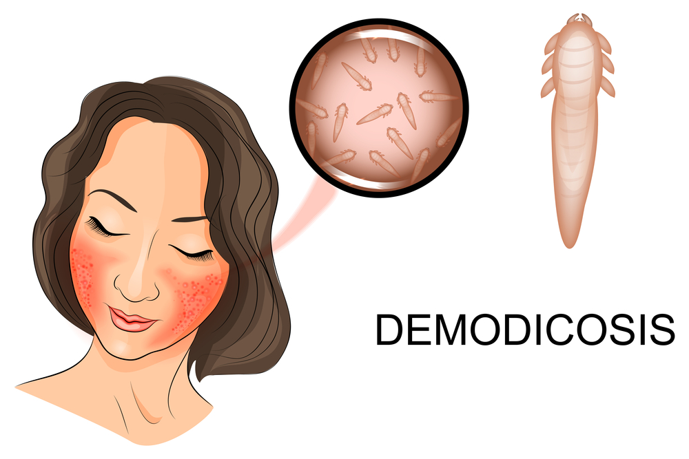 How To Know If You Have Demodex Mites