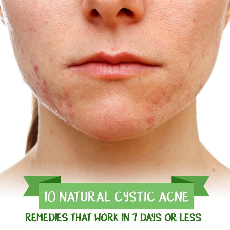 How To Treat Papules Acne Naturally Glow With Home Remedies